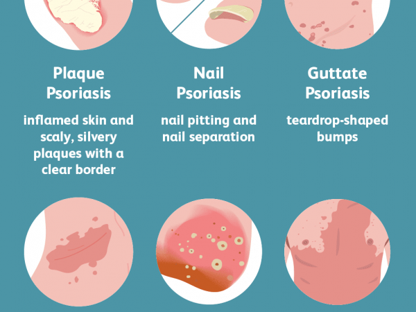 Psoriasis – Signs, Symptoms, And Treatments